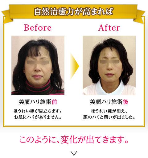 【自然治癒力が高まれば】美顔針施術前:ほうれい線が目立ちます。お肌にハリがありません。>施術後:ほうれい線が消え、顔のハリと潤いが出ました。 このように変化がでてきます