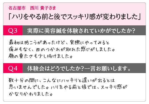 「ハリをやる前と後でスッキリ感が変わりました」名古屋市 西川 貴子さま