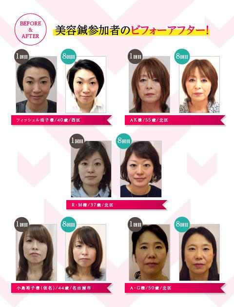 美容鍼参加者のビフォーアフター!