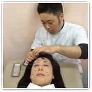 美容鍼 施術
